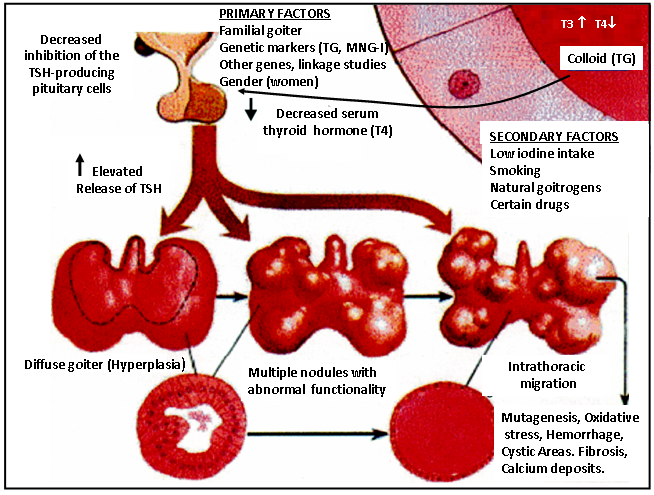 Figure 17-3: Mild iodine deficiency associated or not with smoking, presence of natural goitrogenic, drugs, familial goiter, genetic markers and gender (women) will decrease the inhibition of serum T4 on the pituitary thyrotrophs. Increased TSH production will cause Diffuse goiter followed by nodule formation. Finally, after decades of life, a large multinodular goiter is present with cystic areas, hemorrhage, fibrosis and calcium deposits.