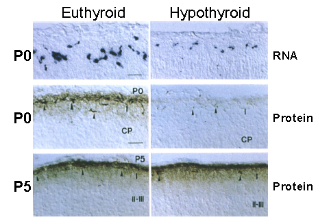Fig 2.-Regulation of Reelin by thyroid hormone. The figure shows slices of the cerebral cortex from euthyroid and hypothyroid newborn rats. The upper panels show in situ hybridization for Reelin RNA. The midle and lower panels show immunohistochemistry of Reelin protein. The RNA is present in isolated cells of layer I, known as Cajal-Retzius cells. The RNA is very low in the hypothyroid animals. The Reelin protein is a matrix protein, seen in these slices concentrated also in layer I. On P0 there is no Reelin protein in the hypothyroid animals, but on P5, the amount of Reelin protein is normal (from Alvarez-Dolado M et al, J Neurosci. 19:6979-3, 1999).