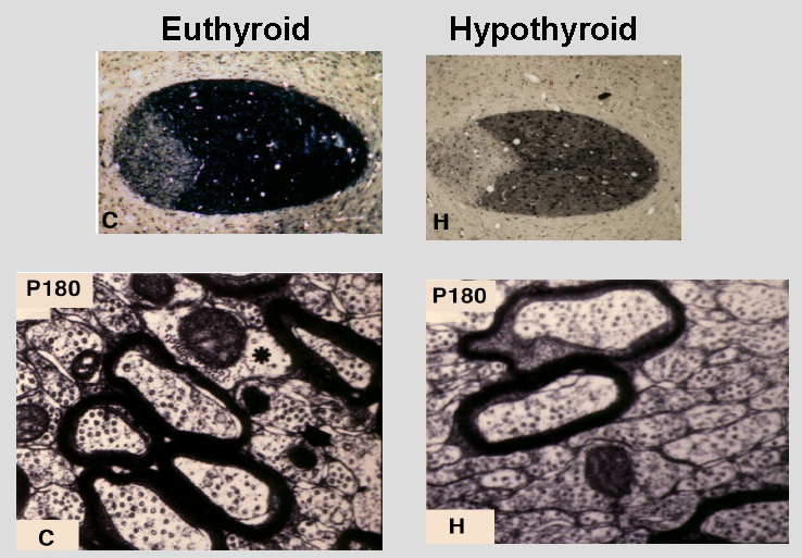 Fig 3.-Myelination in the anterior commisure of euthyroid and hypothyroid rats. Hypothyroidism was produced during the neonatal period, and the rats were analyzed at 6 months of age. He aupper panels show transversal section of the anterior commisure stained for myelin. The lower panels show electro microscopy analysis. The number of myelinated axons is reduced in the hypothyroid rats in parallel to an increased number of small diameter axons. Those axons reaching a critical size have near normal myelin content, but still present structural defects (FromBerbel P et al, Behav Brain Res. 64:9-14, 1994).