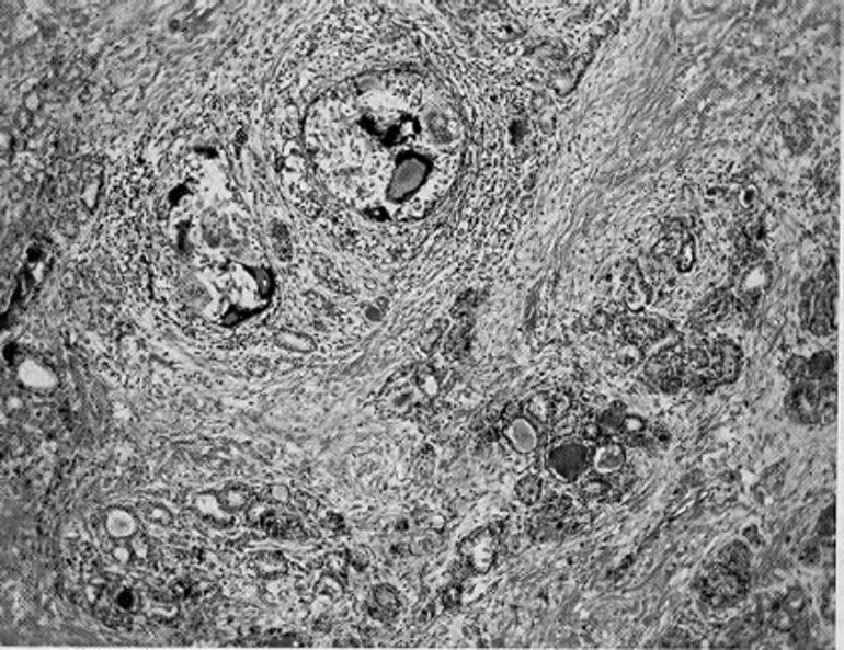 Figure 1. Subacute thyroiditis. Note the discrete granulomas, with giant cells, and the diffuse fibrosis (85 X).