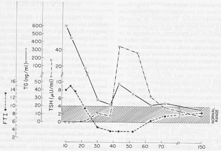 Figure 4. Thyroid function in a patient during the course of deQuervain's (subacute) thyroiditis. During the thyrotoxic phase (days 10 to 20), the serum TG concentration was greatly elevated, the FTI was high, and TSH was suppressed; the erythrocyte sedimentation rate was 86 mm/hr, and the thyroidal RAIU was 2 percent. The TG level and FTI declined in parallel. During the phase of hypothyroidism (days 30 to 63), when the FTI was below normal, a modest transient increase in the serum TG level occurred in parallel with the increase in serum TSH. All parameters of thyroid function were normal by day 150, 5 months after the onset of symptoms.