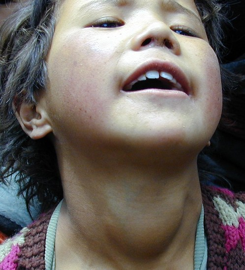 shows a young girl with a soft diffuse goitre