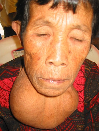 an elderly woman with a huge, longstanding multinodular goiter