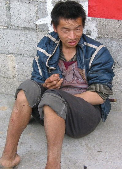 Male from South Eastern China with typical facies of neurological cretinism, who is also deaf -mute and suffering from a less severe proximal muscle weakness in lower limbs.