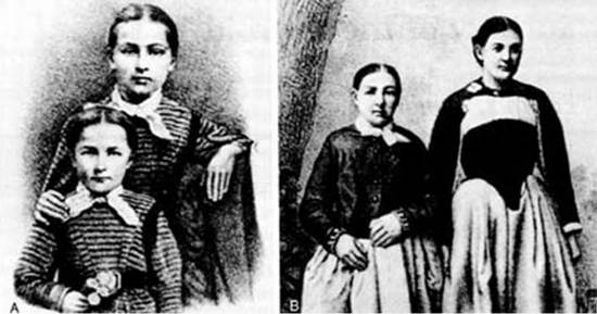 Figure 1. The dramatic case of Maria Richsel, the first patient with postoperative myxedema to have come to Kocher's attention. A , The child and her younger sister before the operation. B , Changes 9 years after the operation. The younger sister, now fully grown, contrasts vividly with the dwarfed and stunted patient. Also note Maria's thickened face and fingers, which are typical of myxedema. (From Kocher T: Uber Kropfextirpation und ihre Folgen. Arch Klin Chir 29:254, 1883.)