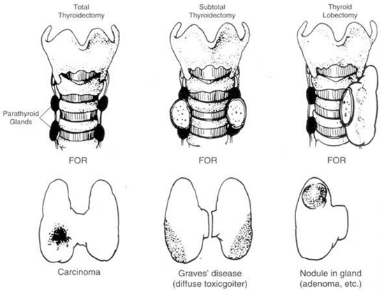 Figure 11. Common operations on the thyroid. In near-total thyroidectomy, a small amount of thyroid tissue is left to protect the recurrent laryngeal nerve and upper parathyroid gland. (From Kaplan EL: Surgical endocrinology. In Polk HC, Stone HH, Gardner B, eds, Basic Surgery, 4th edition, St. Louis, Quality Medical Publishing, 1993, pp 162-195.)