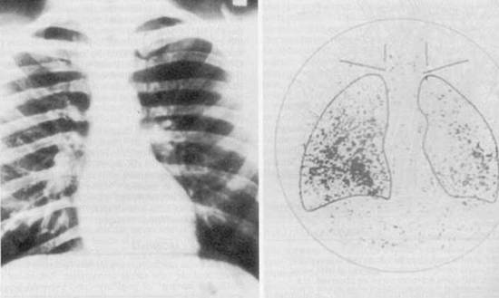 Figure 12. Despite the fact that the chest radiograph was read as normal, a total body scan using radioiodine demonstrated uptake in both lung fields, thus signifying the presence of unknown metastatic thyroid cancer. Note that the thyroid has been removed surgically because no uptake of isotope is present in the neck.