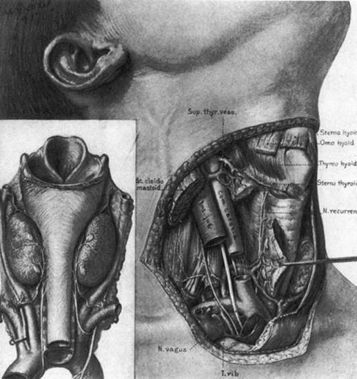 Figure 2. The normal anatomy of the neck in the region of the thyroid gland. (From Halsted WS, The operative story of goiter. Johns Hopkins Hospital Rep 19:71, 1920.)