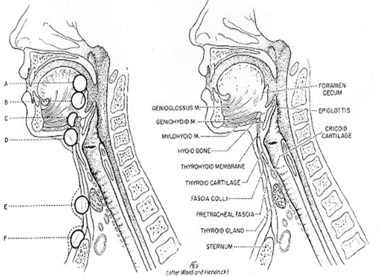 Figure 20. Location of thyroglossal cysts: (A) in front of the foramen cecum; (B) at the foramen cecum; (C) suprahyoid; (D) infrahyoid; (E) area of the thyroid gland; (F) suprasternal. (From Sedgwick CE, Cady B: Surgery of the Thyroid and Parathyroid Glands, 2nd ed. Philadelphia, WB Saunders, 1980.)