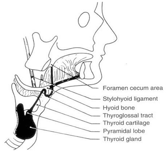 Figure 21. Diagram of the course of the thyroglossal tract. Note its proximity to the hyoid bone. (From Allard RHB: The thyroglossal cyst. Head Neck Surg 5:134–146, 1982.)