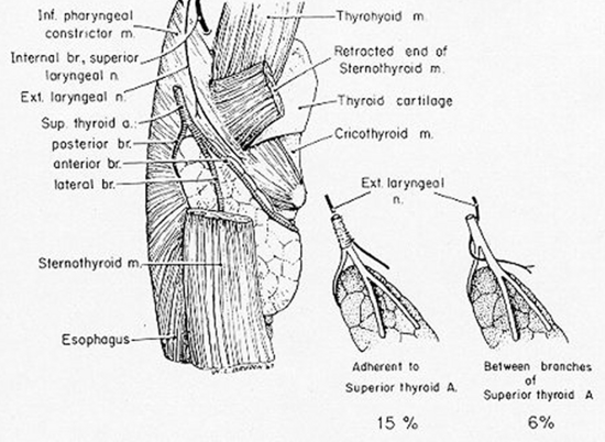 Figure 6. Proximity of the external branch of the superior laryngeal nerve to the superior thyroid vessels. (From Moosman DA, DeWeese MS: The external laryngeal nerve as related to thyroidectomy. Surg Gynecol Obstet 127:1101, 1968.)