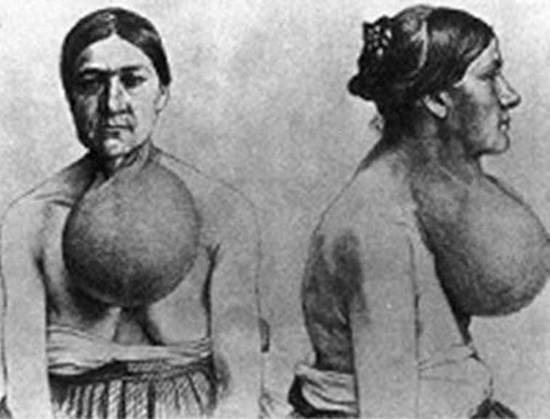 Figure 9b. Large goiters are prevalent in areas of iodine deficiency. A woman from Switzerland operated upon by Dr. Theodor Kocher (From Kocher (3)).