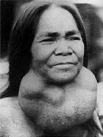 Figure 9c. Large goiters are prevalent in areas of iodine deficiency. Large goiters still occur in many parts of the world, as demonstrated in this woman from a mountainous region of Vietnam, 1970.