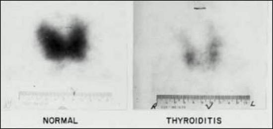 Figure 4. Fluorescent thyroid scan in thyroiditis. The normal thyroid scan (left) allows identification of a thyroid with normal stable (127I) stores throughout both lobes. A marked reduction in 127I content is apparent throughout the entire gland involved with Hashimoto's thyroiditis (right).