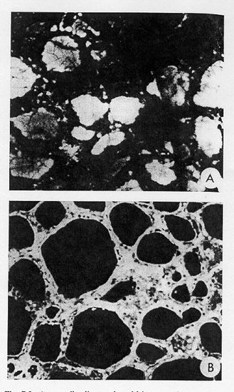Figure 7-11Autoantibodies to thyroid in sera of reovirus infected mice detected by indirect immunofluorescence.  (a) Frozen section of normal mouse thyroid incubated with sera obtained from mice 21 days after infection, showing staining of colloid characteristic of antithyroglobulin antibody  (original magnification, X200).  (b) Section of normal mouse thyroid (fixed in Bouin's solution) incubated with sera obtained from mice 21 days after infection, showing staining of thyroid acinar cells (original magnification, X 200).  Reproduced with permission from I. Okayasu and S. Hatokeyama, Clin. Immunol. Immunopath., 31:334, 1984.
