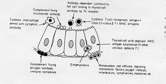 Figure 7-6 Some of the proposed mechanisms which could produce thyroid damage in AITD. Emperipolesis is the movement of lymphocytes and macrophages between epithelial cells and occurs in many organs such as gut, bronchus, and thyroid.   The existence of interepithelial cells with immunoreactive potential is obviously relevant to an understanding of how  autoantigens at the luminal surface of the thyroid cells may  be exposed to allow recognition.  (From Weetman AP, McGregor AM.  Endocrine Rev 5: 309-355, 1984 ).