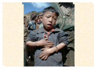 an adolescent boy from Tibet from an area of severe iodine deficiency, being supported by his father, and suffering from congenital hypothyroidism, plus the neurological features of cretinism and having an atrophic thyroid gland.