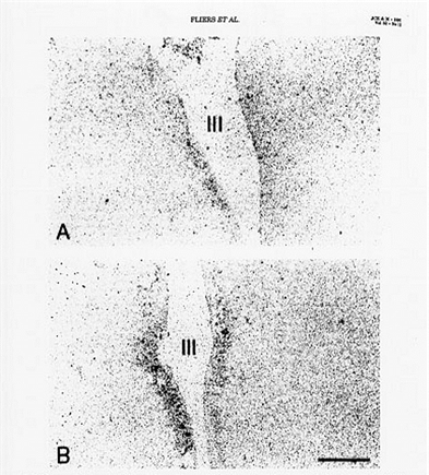 Figure 6. In situ hybridization study demonstrating mRNA for TRH in the periventricular nuclei of a subject who died with NTIS in Panel A, and a subject who died accidentally in Panel B. mRNA for TRH is significantly reduced in patients with NTIS. (Reference 90)