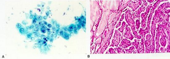 Figure 9. Papillary thyroid carcinoma. A, Follicular cells with large irregular nuclei, nuclear grooving, and pale chromatin (Papanicolaou, ×400). B, Histologic preparation showing typical papillary configurations (hematoxylin-eosin, ×50).