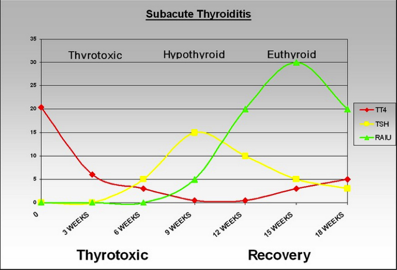 Figure 2. Thyroid function during the course of deQuervain's (subacute) thyroiditis. During the thyrotoxic phase, Total T4 is high, and TSH is suppressed. Later during the period of hypothyroidism there is gradual increase in TSH until TSH is normalized. Radioactive Iodine uptake which is initially suppressed improves during recovery phase.
